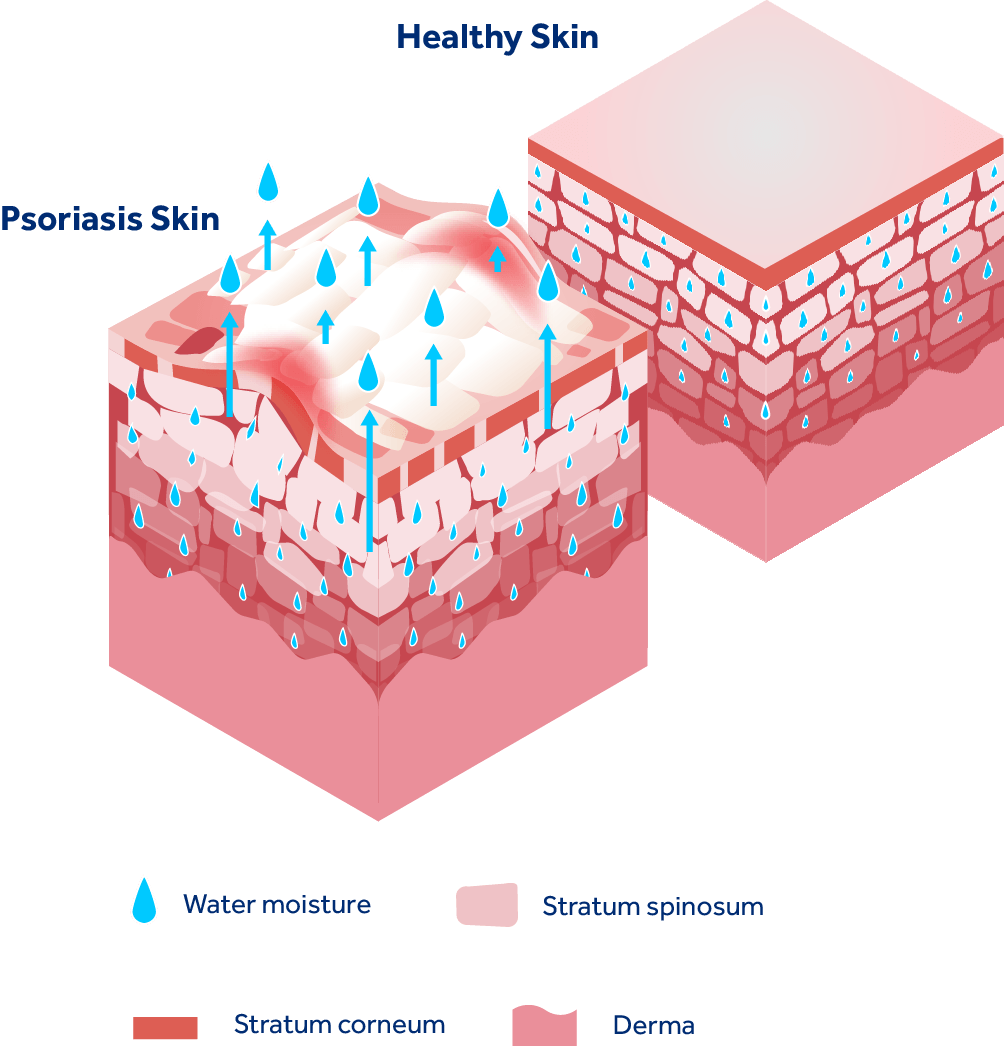 Illustrated image comparing psoriasis skin with healthy skin.